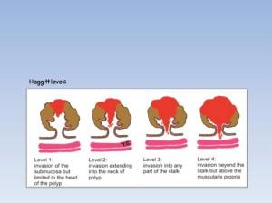 Haggitt levels (Anklicken für größere Ansicht)